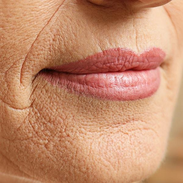 Riduri în jurul buzelor